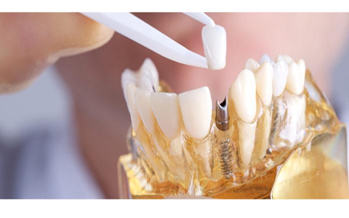 implantes-dentales-dentistas-en-madrid-pilar-garrido.