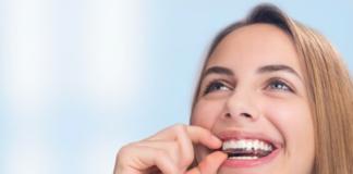 ortodoncia invisible adolescentes, invisalign teen, ortodoncia invisalign, invisalign madrid