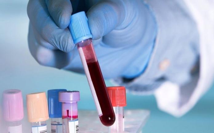 analisis de sangre coronavirus